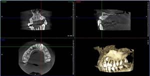 Radiologia 2D-3D